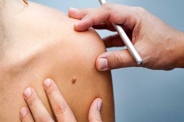 Melanoma: redobre a atenção com pintas no corpo