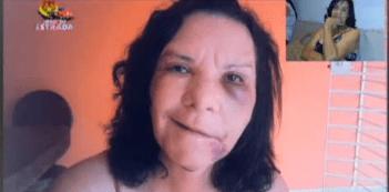 Cirurgia plástica desfigura rosto de apresentadora paranaense