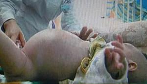 Menino de dois anos passa por cirurgia de gravidez