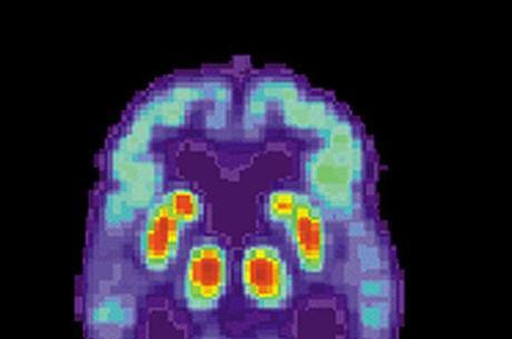 Descoberta pode levar à cura do mal de Alzheimer e Parkinson