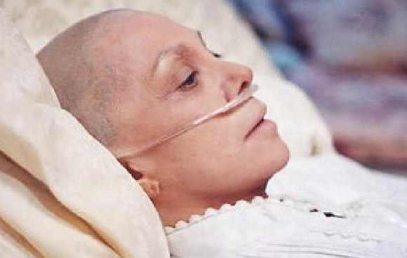Dez sinais de câncer frequentemente ignorados