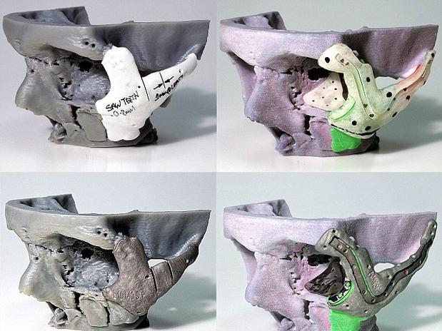 cranio-modelo-3d