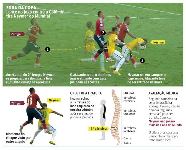 infografico-detalha-lesao-sofrida-por-neymar-apos-levar-joelhada-de-colombiano-zuniga-durante-quartas-de-fin(1)