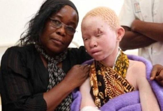 Pessoas albinas são vendidos por até R$ 160 mil para rituais de magia