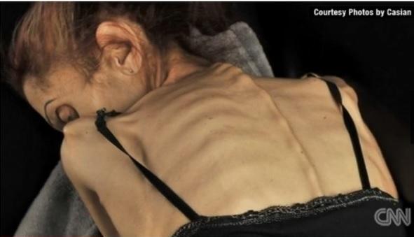 Pesando 18 quilos, atriz com anorexia busca ajuda para tratamento