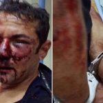 Isac Neris alega ter sido espancado; PM afirma que ele caiu