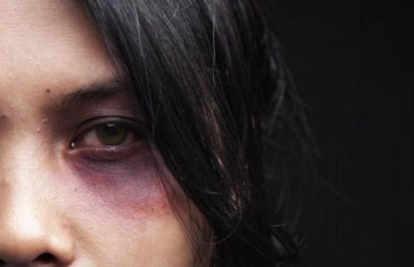 Mulher tem cabeça raspada e partes íntimas queimadas pelo marido em Manaus