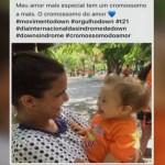 Mulher compara crianças com Síndrome de Down a cachorros e gera revolta