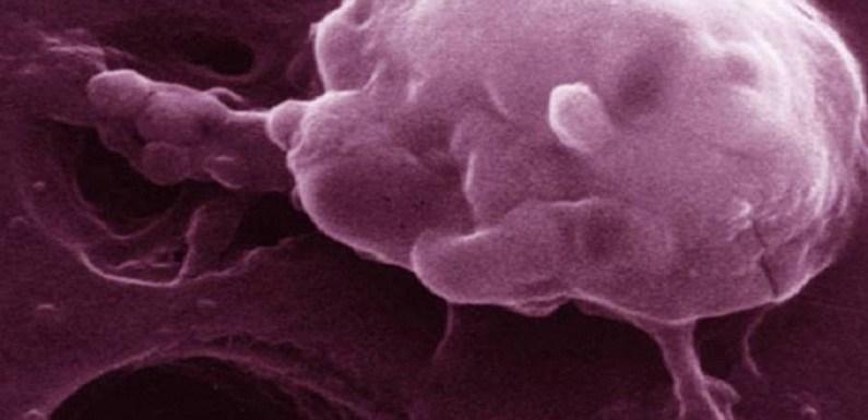 Pesquisadores testam novo tratamento não tóxico contra o câncer