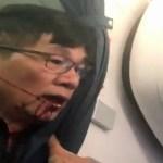 Médico perdeu 2 dentes e teve nariz quebrado ao ser arrancado de voo da United, diz advogado