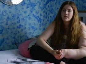 Transtorno genético faz braço de adolescente crescer sem parar