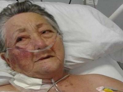 Morre idosa que foi agredida por funcionário de UTI em São Paulo