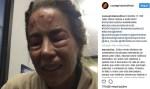 Danielle Winits brinca que sofreu agressão e recebe críticas