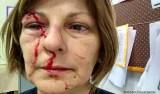 Garoto que bateu em professora está foragido após Justiça determinar internação