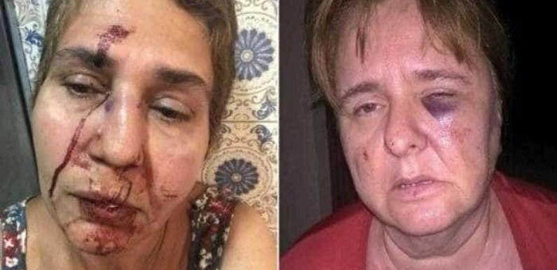 Briga entre vizinhos termina em pancadaria com três mulheres agredidas; vídeo