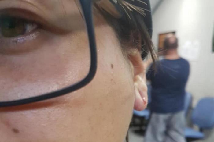 No RS, homem ataca casal de namoradas à chutes e socos após tentar atropelar