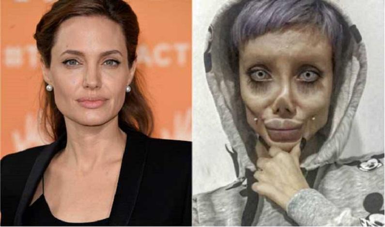 História da jovem que fez 50 cirurgias para ficar igual a Angelina Jolie é falsa