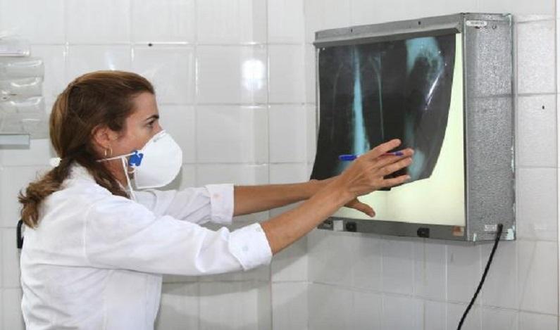 Brasil tem 34% dos casos de coinfecção de tuberculose e HIV do mundo