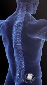 alerts-device-medtronic-neurostimulation-140317-02
