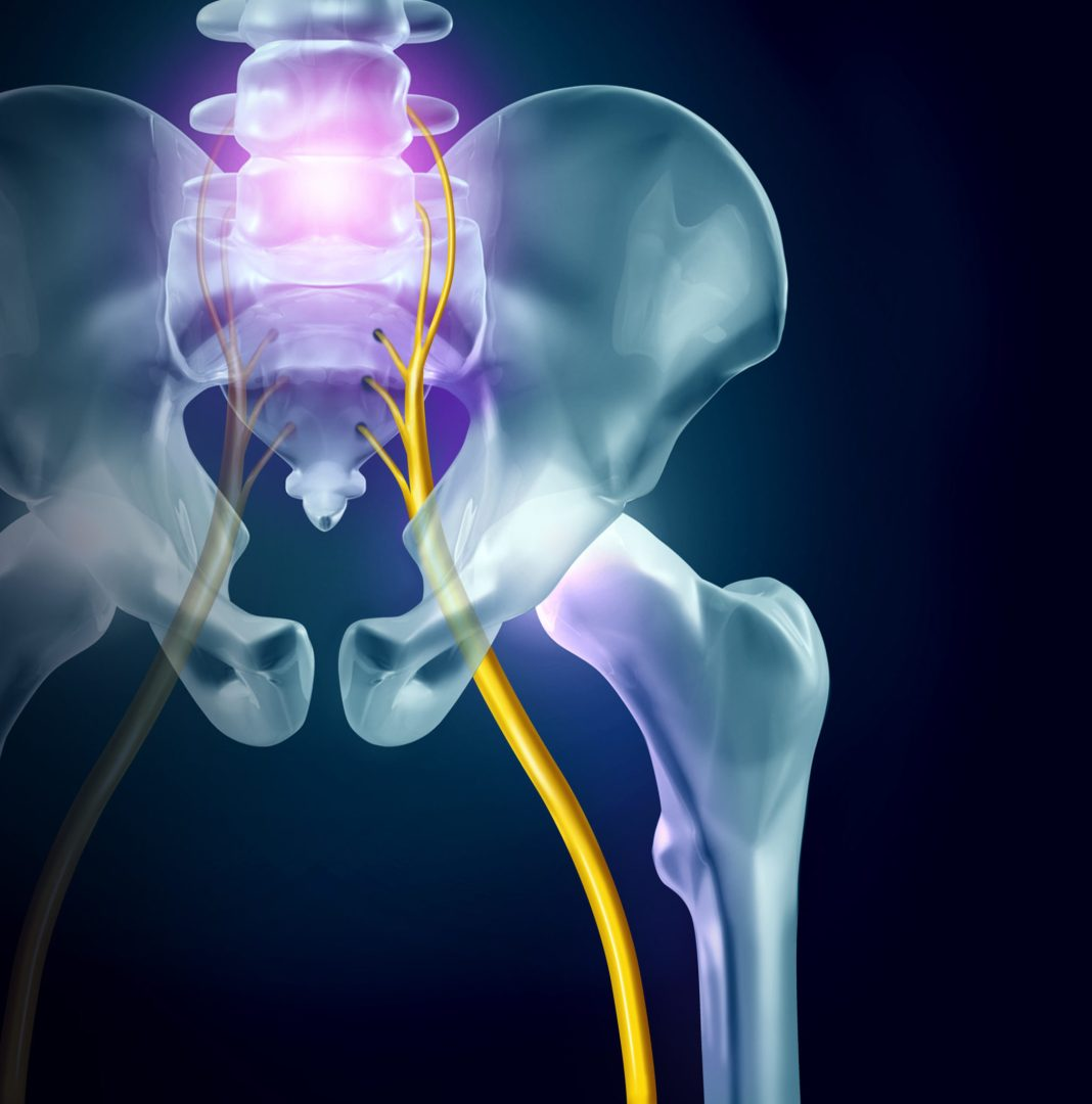 coping with sciatica