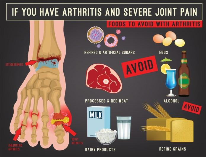Foods to Avoid for Rheumatoid Arthritis Chart