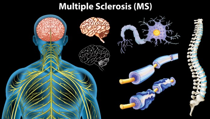 Neuropathic Pain Multiple Sclerosis