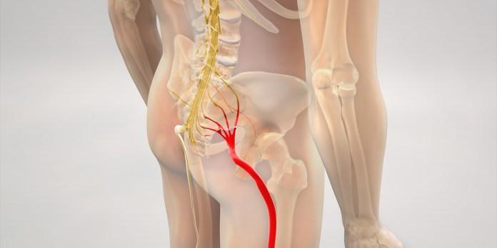Neuropathic Pain Injury