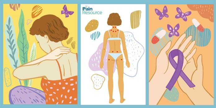 fibromyalgia is prevalent in women