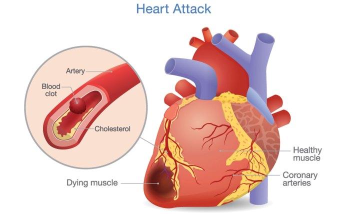 heart muscle damage