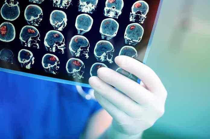new brain implant for Parkinson's Disease