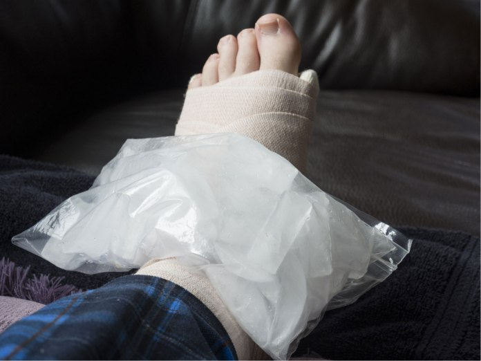 sprains and strains the RICE method