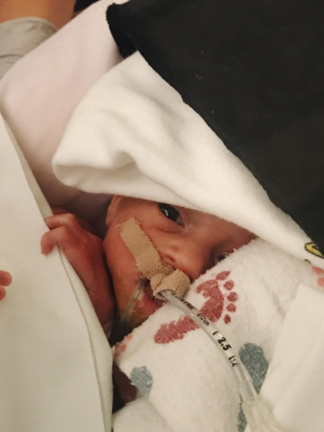 Birth story | Preemie Twins born at 30 weeks | NICU