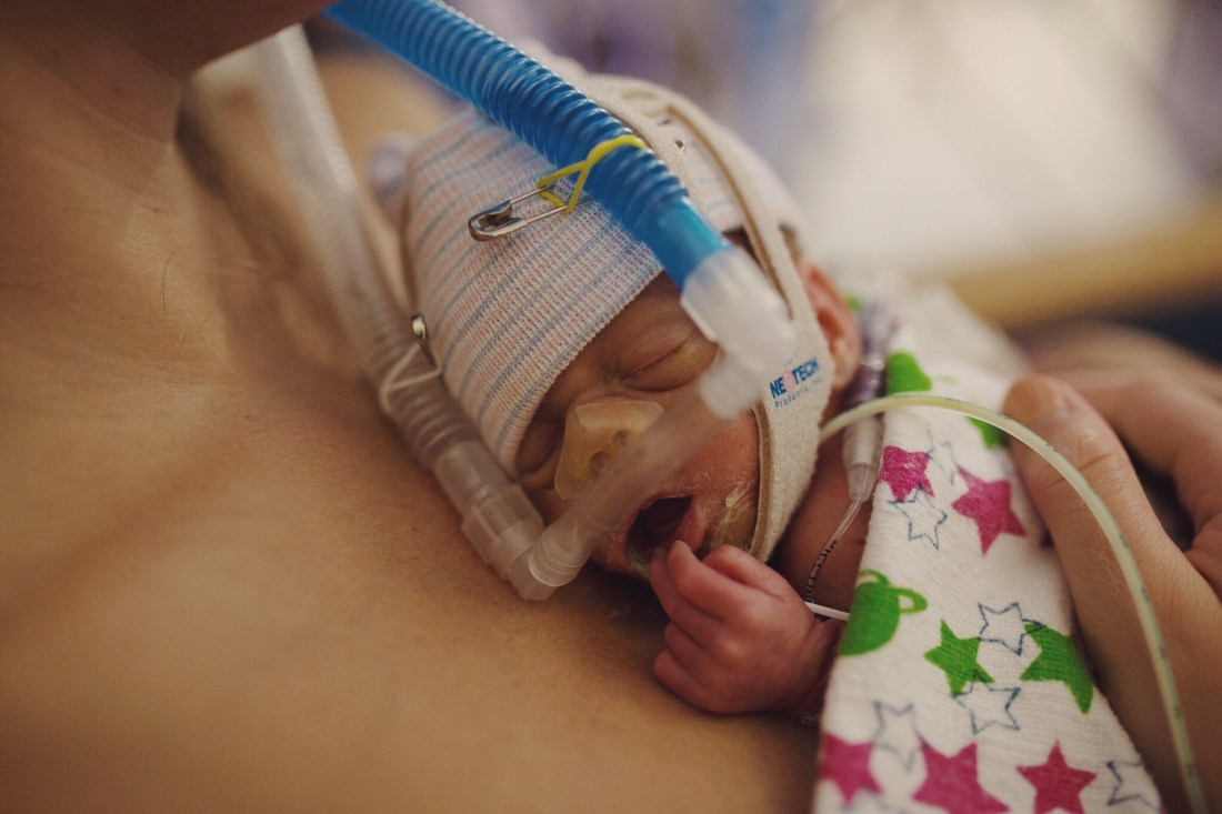 Hardest days in the NICU