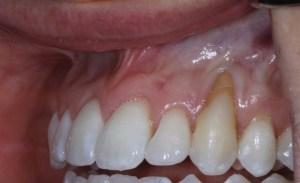 Dr. Scott Harris | Dental Before and After | Impacted Tooth, Receding Gums