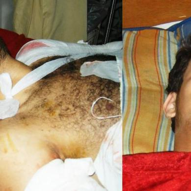 Gilgit: Injured journalist and his cousin out of danger