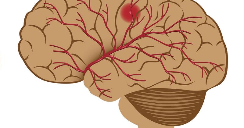 Nevrologiske sykdommer