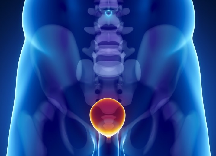 Kosthold uten kjøtt, egg og meieriprodukter- mot kreft i prostata