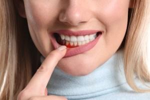 Parodontitida: Když dásně krvácejí