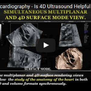 Fetal Echocardiography – Is 4D Ultrasound Helpful STIC? – Advanced STIC Techniques