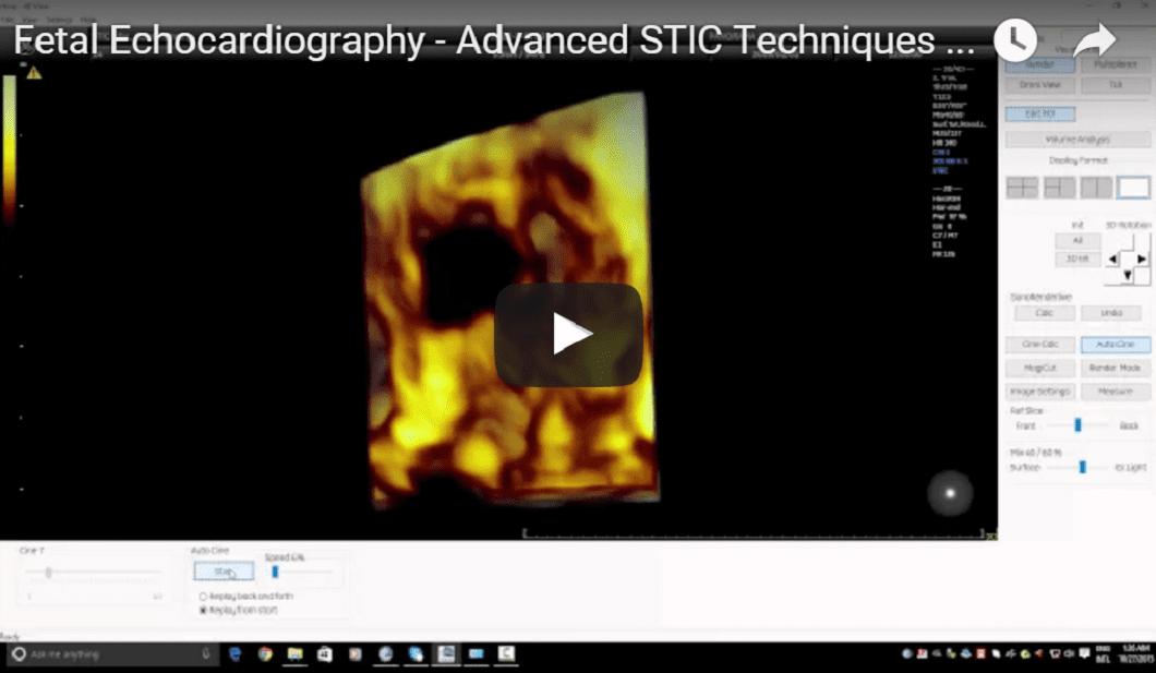 Fetal Echocardiography - Advanced STIC Techniques - Tricuspid Valve Assessment (Tristar Sign)