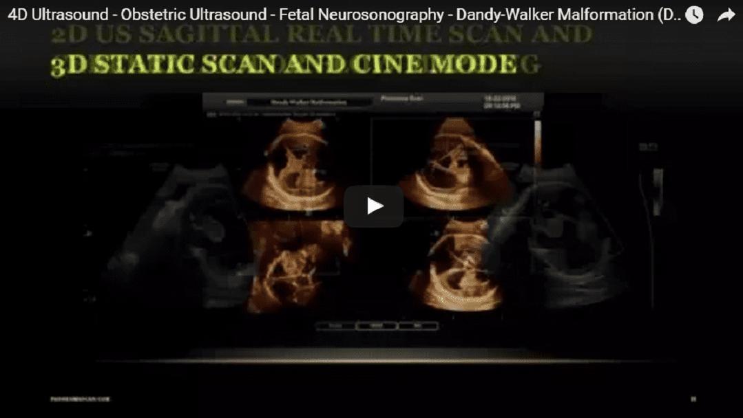 4D Ultrasound - Obstetric Ultrasound - Fetal Neurosonography - Dandy-Walker Malformation (DWM)