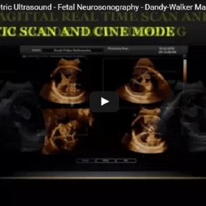 4D Ultrasound – Obstetric Ultrasound – Fetal Neurosonography – Dandy-Walker Malformation (DWM)