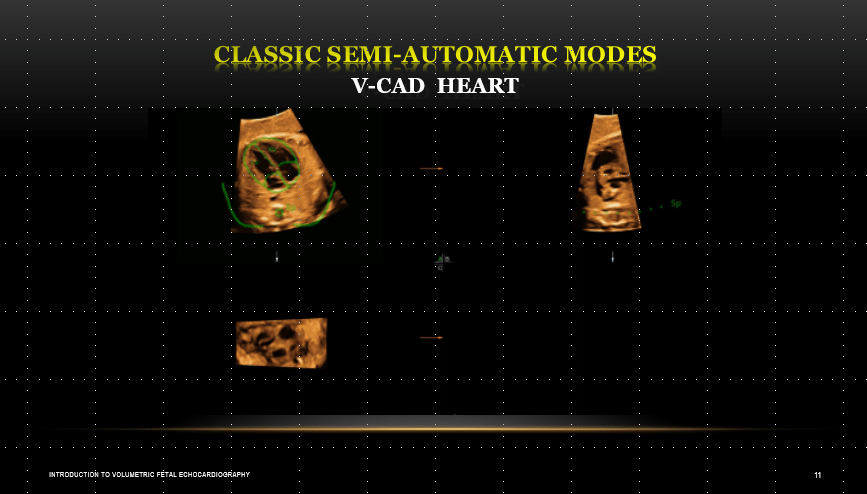 Introduction to Volumetric Fetal Echocardiography Course