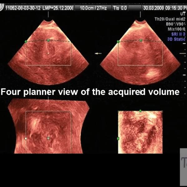 fibroid-8