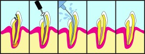Dental root canal treatment illustrated step by step.