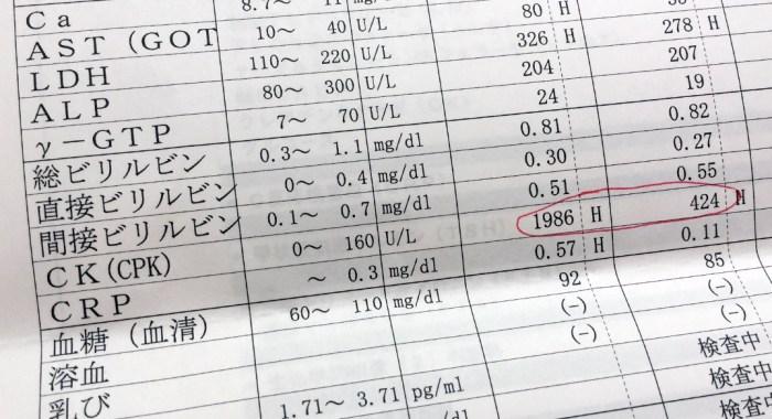 血液検査の結果
