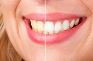 tooth whitening salem ma