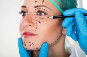 técnicas redefine perfil e harmoniza a face