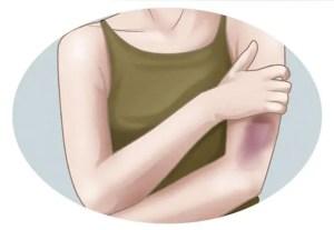 Por que alguns hematomas surgem de maneira espontânea?