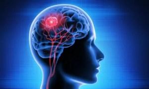 Imunoterapia é aposta promissora para o tratamento de quadros de tumores cerebrais